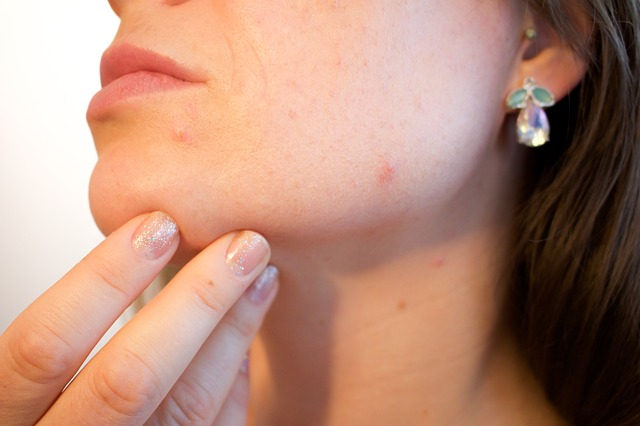Acne and skin infection due to dirty makeup brushes